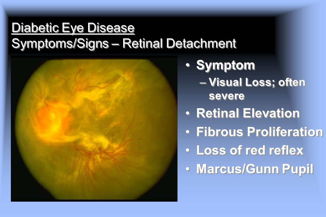Diabetic Eye Disease Symptoms/Signs – Retinal Detachment