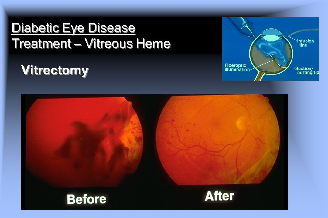 Diabetic Eye Disease Treatment – Vitreous Heme