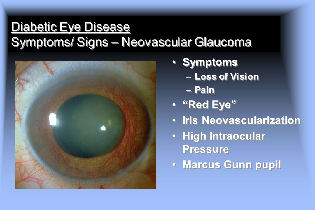 Diabetic Eye Disease Symptoms/ Signs – Neovascular Glaucoma