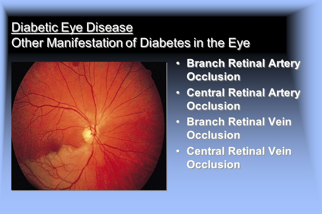 Diabetic Eye Disease Other Manifestation of Diabetes in the Eye