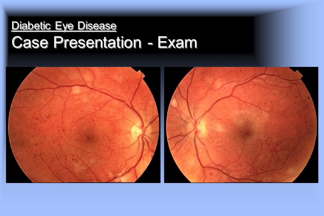 Diabetic Eye Disease Case Presentation - Exam
