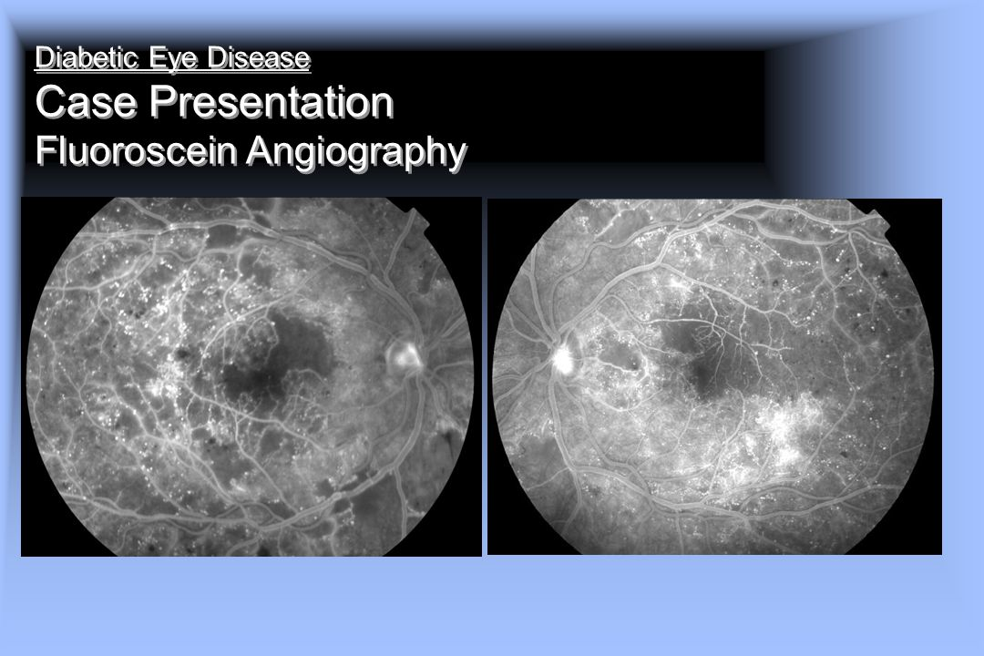 Diabetic Eye Disease Case Presentation Fluoroscein Angiography