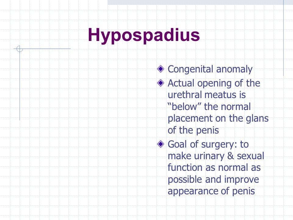 Hypospadius Congenital anomaly