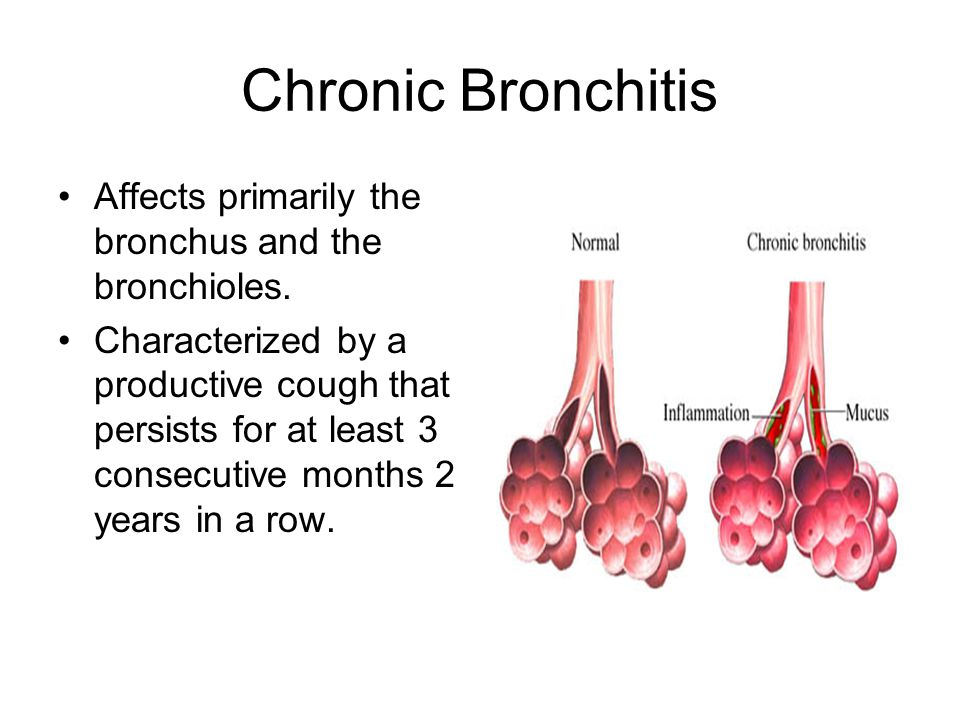 Chronic Bronchitis Affects primarily the bronchus and the bronchioles.