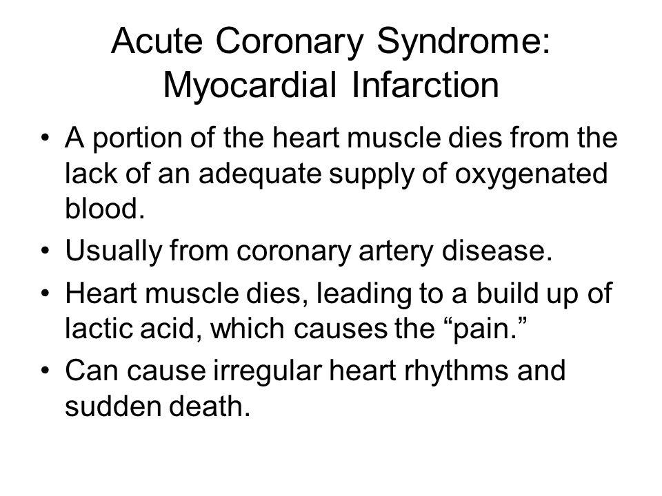 Acute Coronary Syndrome: Myocardial Infarction