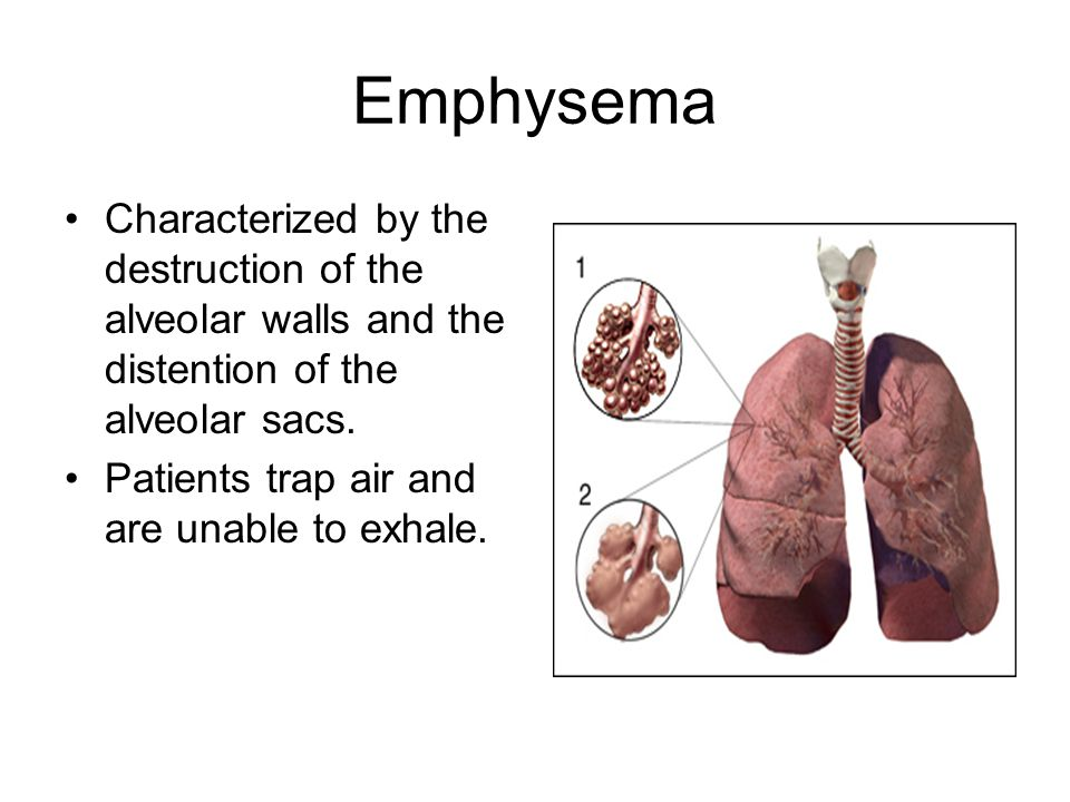 Emphysema Characterized by the destruction of the alveolar walls and the distention of the alveolar sacs.