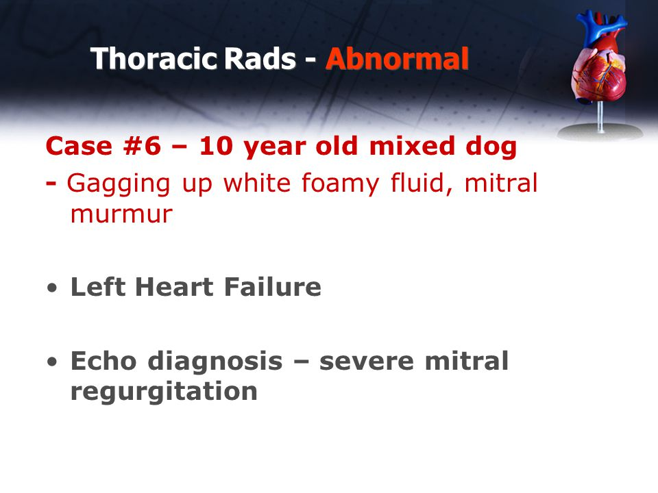 Thoracic Rads - Abnormal