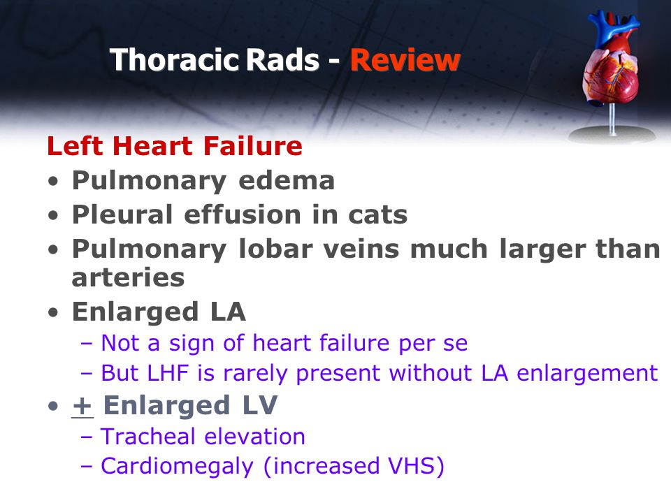 Thoracic Rads - Review Left Heart Failure Pulmonary edema