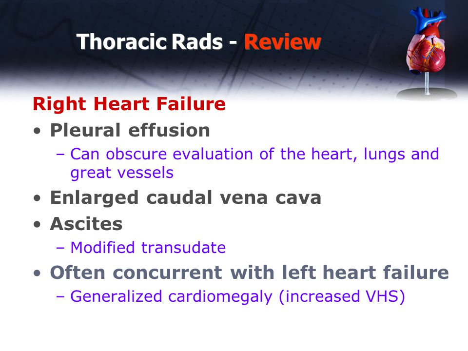 Thoracic Rads - Review Right Heart Failure Pleural effusion