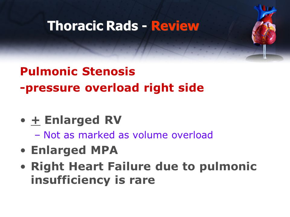 Thoracic Rads - Review Pulmonic Stenosis -pressure overload right side
