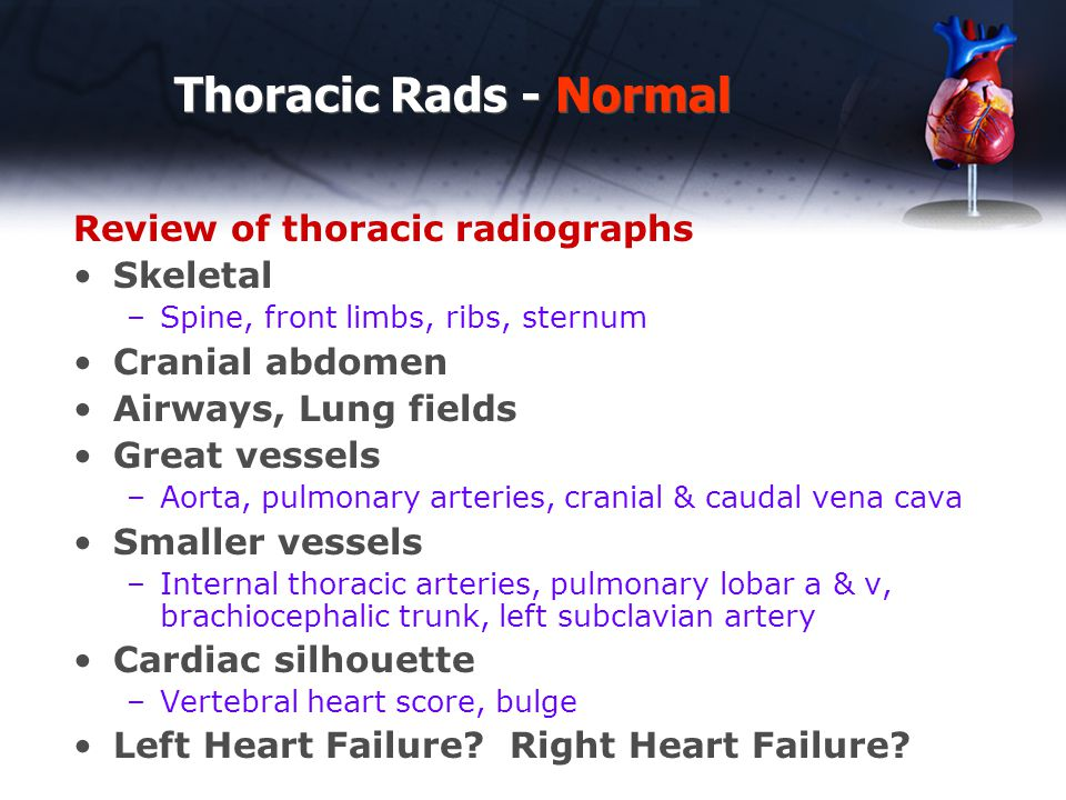 Thoracic Rads - Normal Review of thoracic radiographs Skeletal