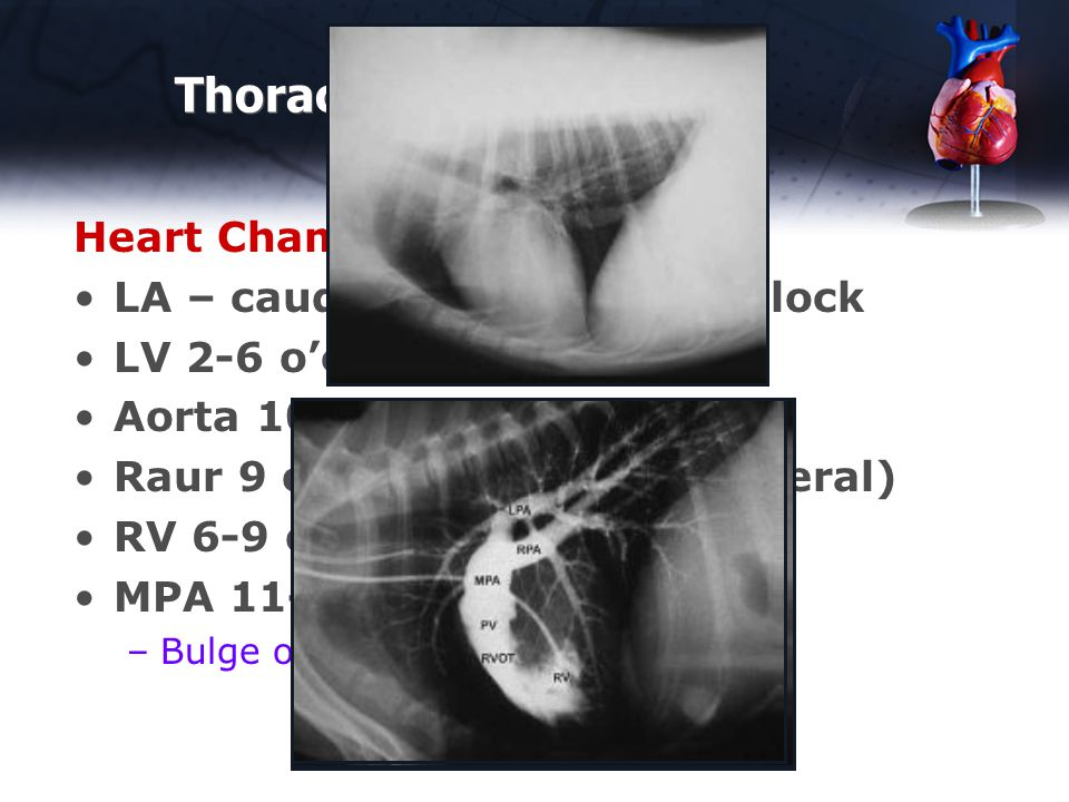 Thoracic Rads - Normal Heart Chambers – Lateral