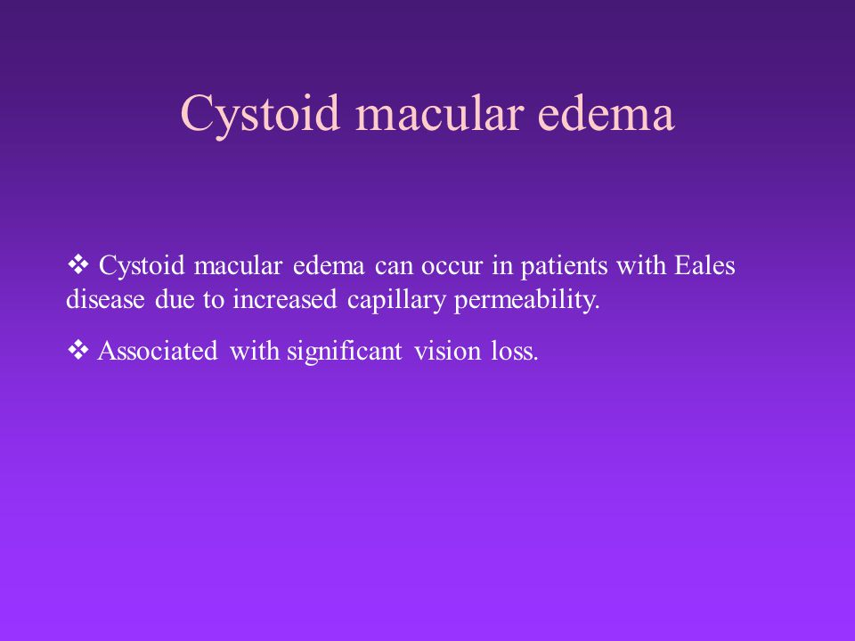 Cystoid macular edema Cystoid macular edema can occur in patients with Eales disease due to increased capillary permeability.