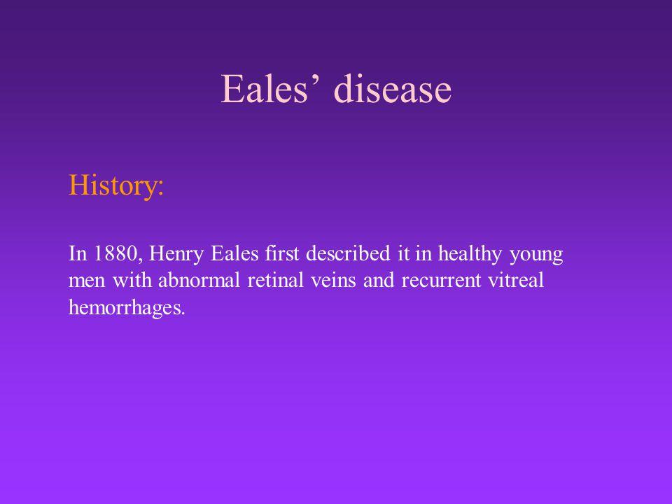 Eales' disease History: