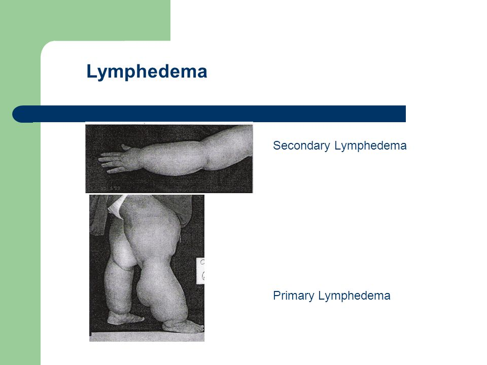 Secondary Lymphedema Primary Lymphedema Lymphedema