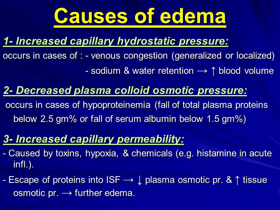 Causes of edema 1- Increased capillary hydrostatic pressure: