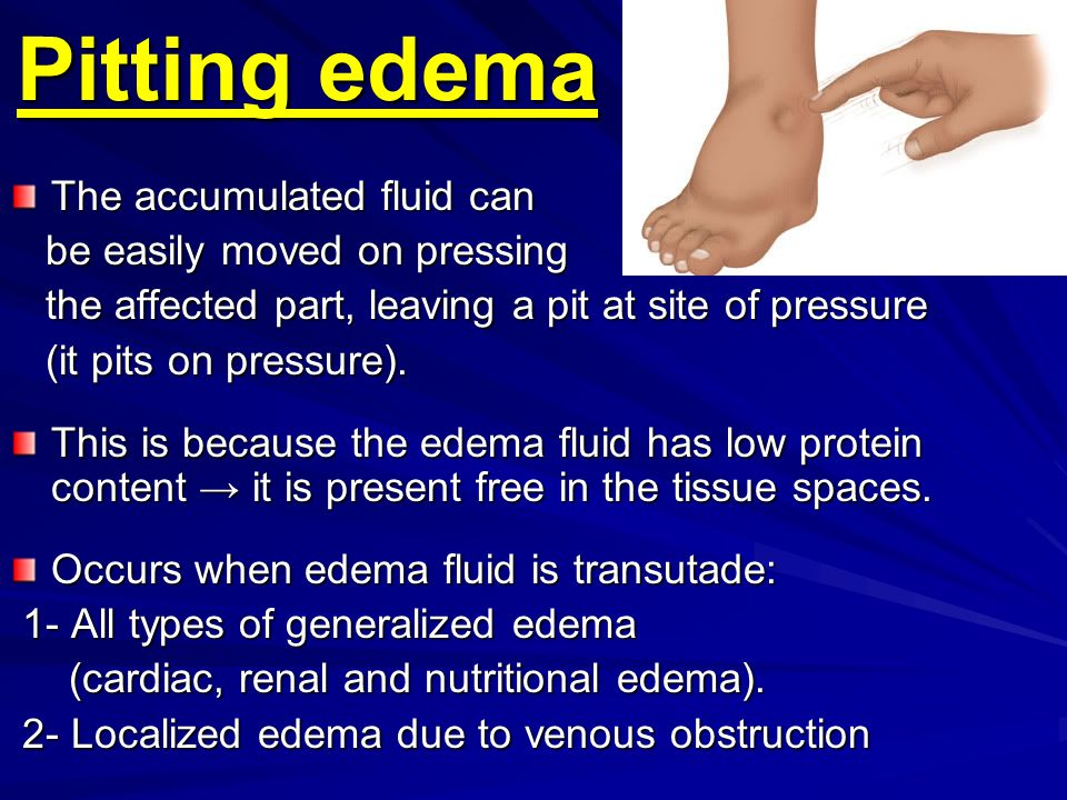 Pitting edema The accumulated fluid can be easily moved on pressing