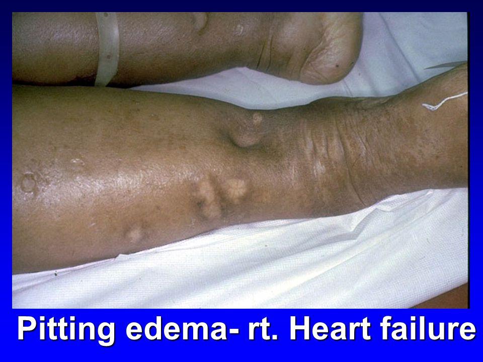 Pitting edema- rt. Heart failure