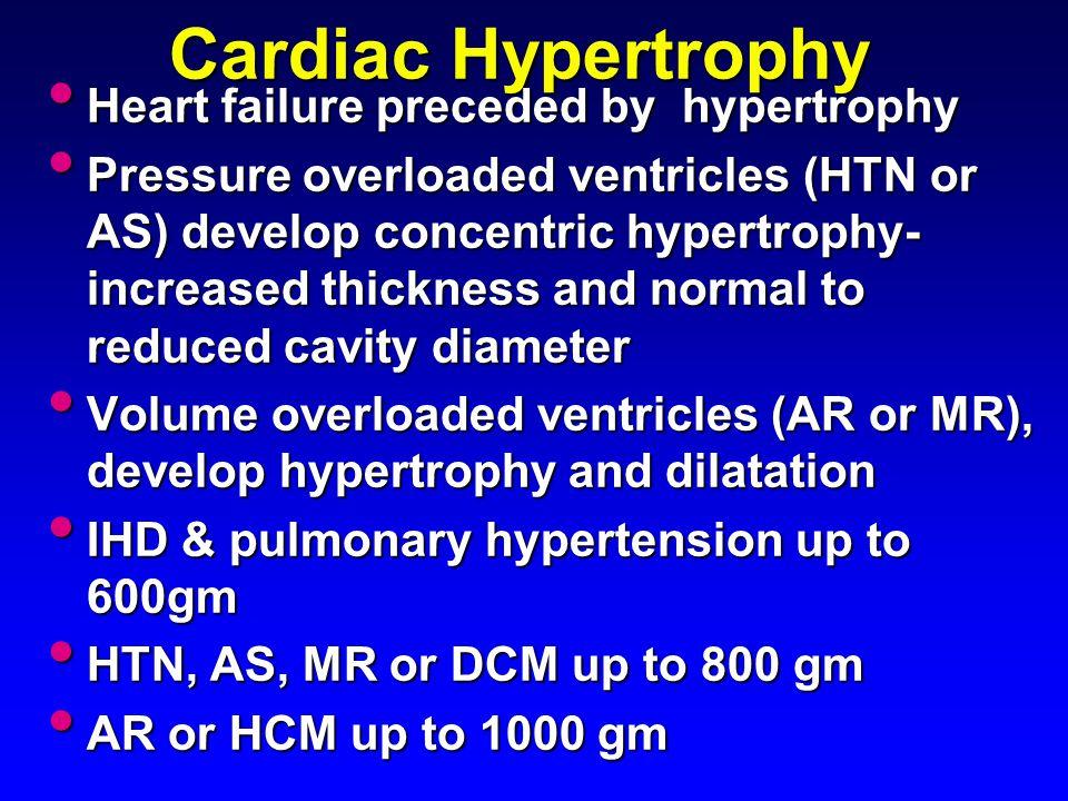 Cardiac Hypertrophy Heart failure preceded by hypertrophy