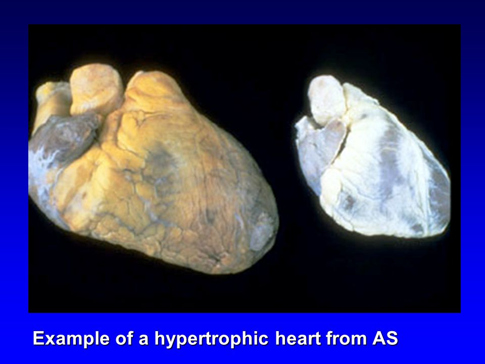 Example of a hypertrophic heart from AS