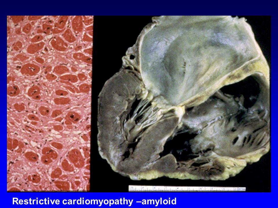 Restrictive cardiomyopathy –amyloid
