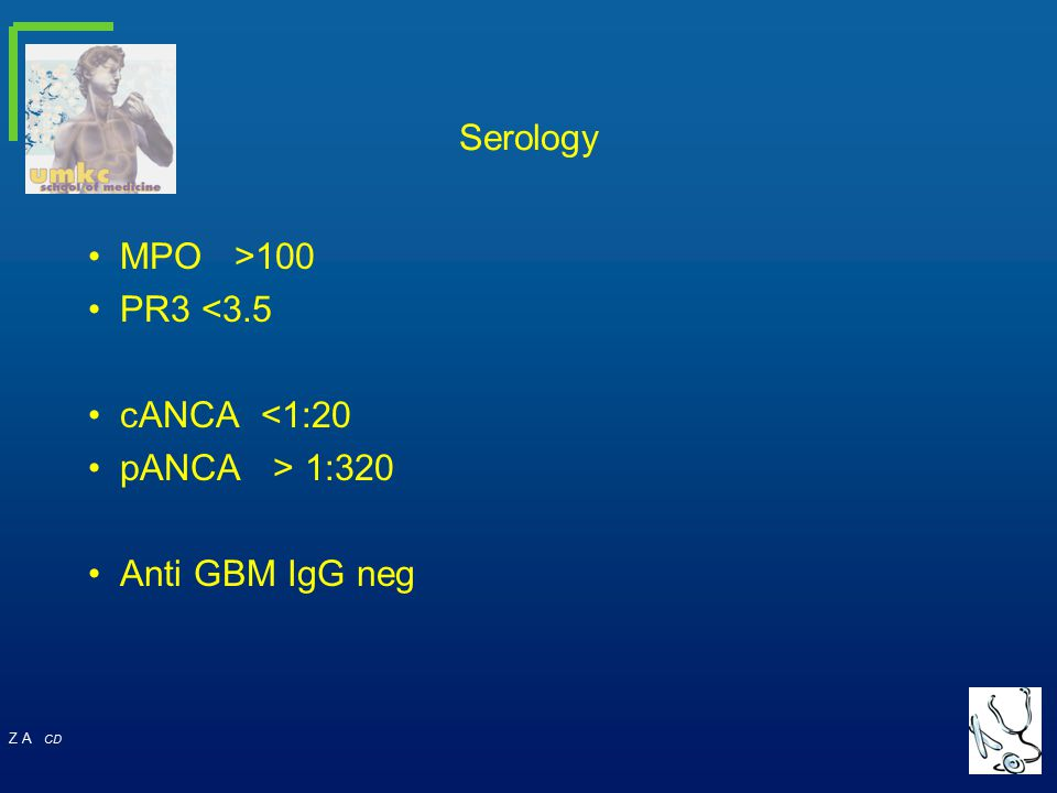 Serology MPO >100 PR3 <3.5 cANCA <1:20 pANCA > 1:320 Anti GBM IgG neg