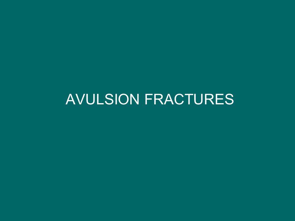 AVULSION FRACTURES