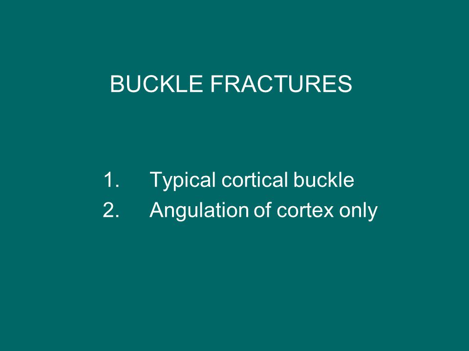 BUCKLE FRACTURES 1. Typical cortical buckle