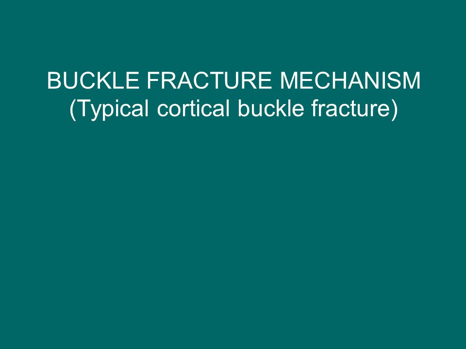 BUCKLE FRACTURE MECHANISM (Typical cortical buckle fracture)