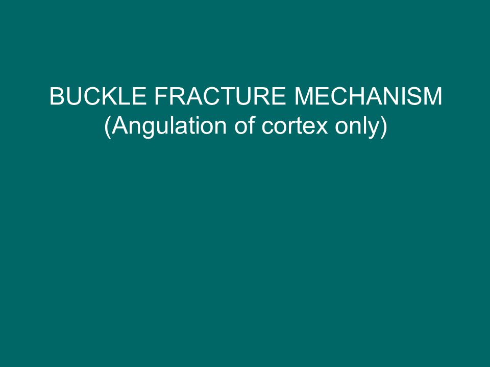 BUCKLE FRACTURE MECHANISM (Angulation of cortex only)