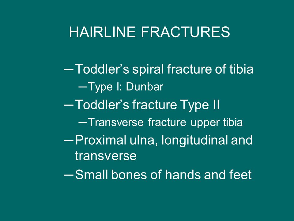 HAIRLINE FRACTURES Toddler's spiral fracture of tibia