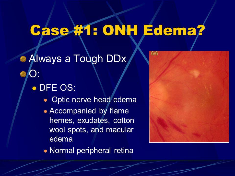Case #1: ONH Edema Always a Tough DDx O: DFE OS: