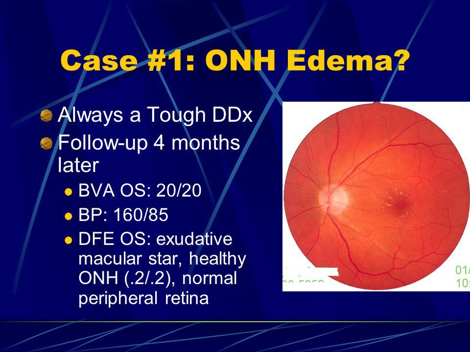 Case #1: ONH Edema Always a Tough DDx Follow-up 4 months later
