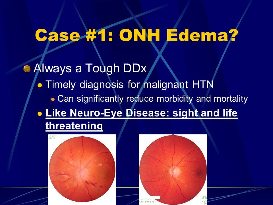 Case #1: ONH Edema Always a Tough DDx
