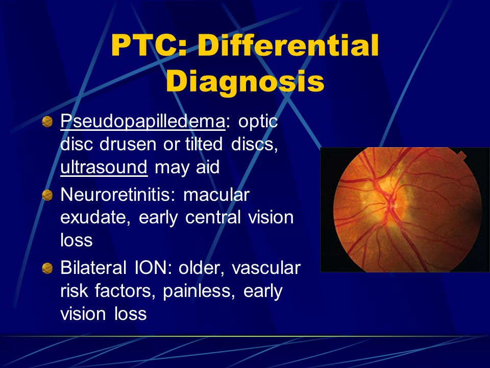 PTC: Differential Diagnosis