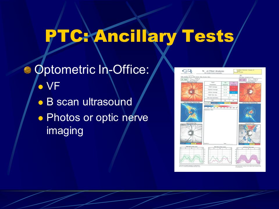 PTC: Ancillary Tests Optometric In-Office: VF B scan ultrasound