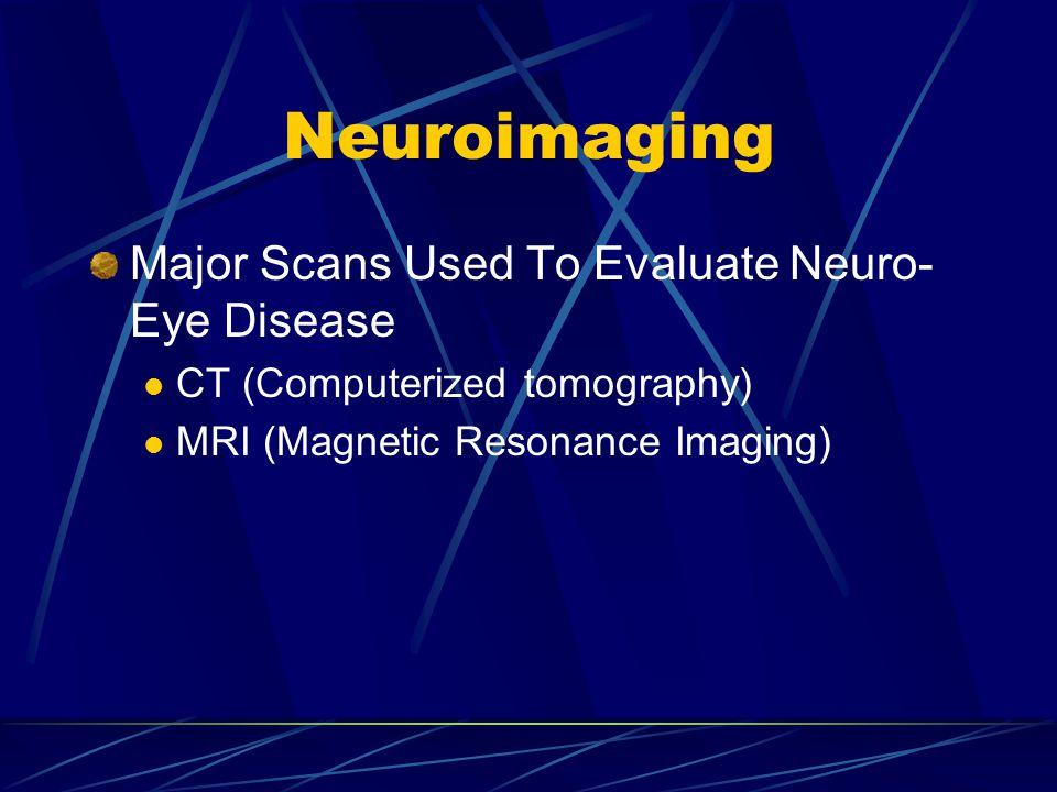 Neuroimaging Major Scans Used To Evaluate Neuro-Eye Disease
