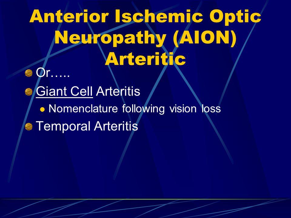 Anterior Ischemic Optic Neuropathy (AION) Arteritic