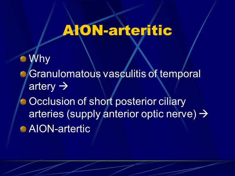 AION-arteritic Why Granulomatous vasculitis of temporal artery 