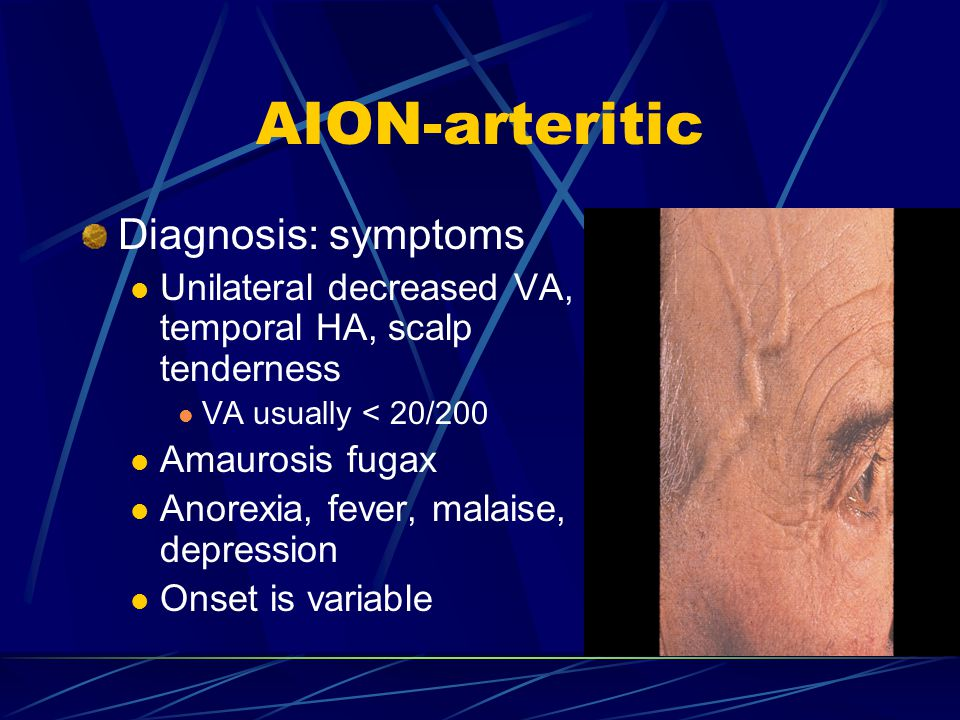 AION-arteritic Diagnosis: symptoms
