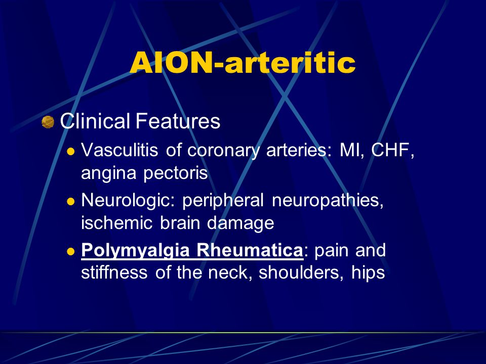 AION-arteritic Clinical Features