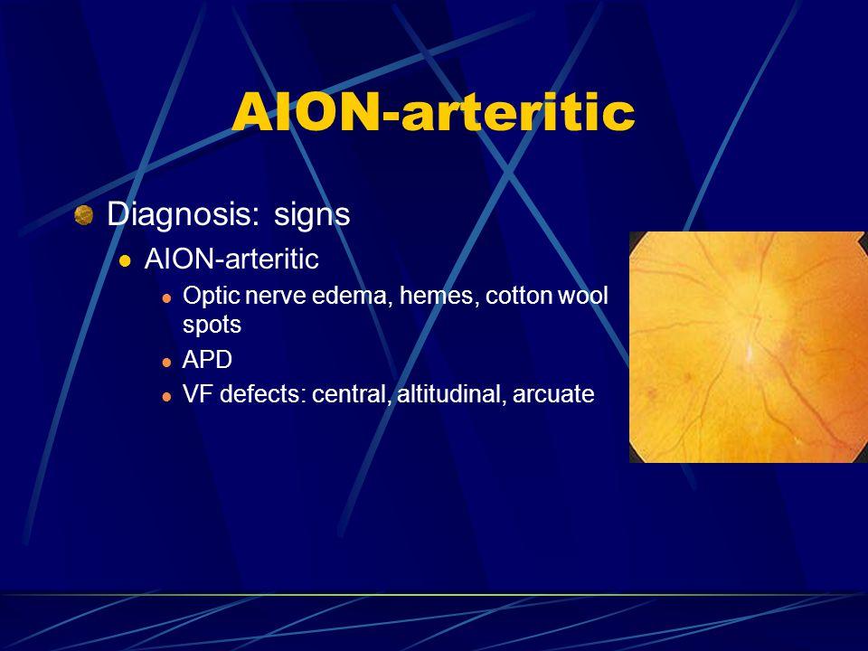 AION-arteritic Diagnosis: signs AION-arteritic