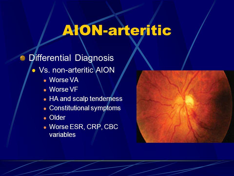 AION-arteritic Differential Diagnosis Vs. non-arteritic AION Worse VA