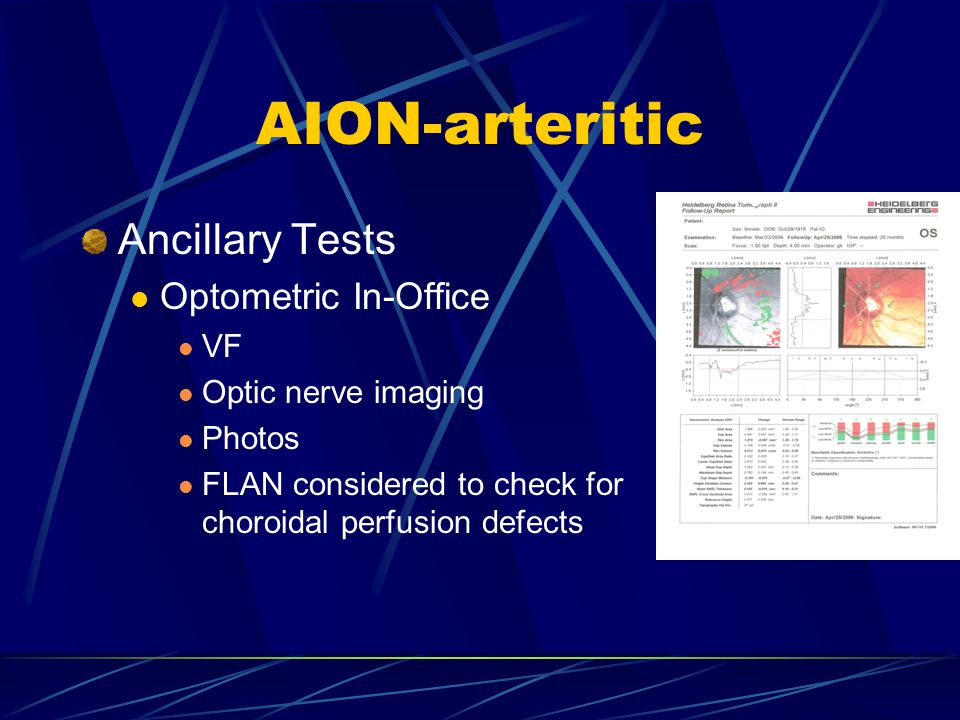 AION-arteritic Ancillary Tests Optometric In-Office VF