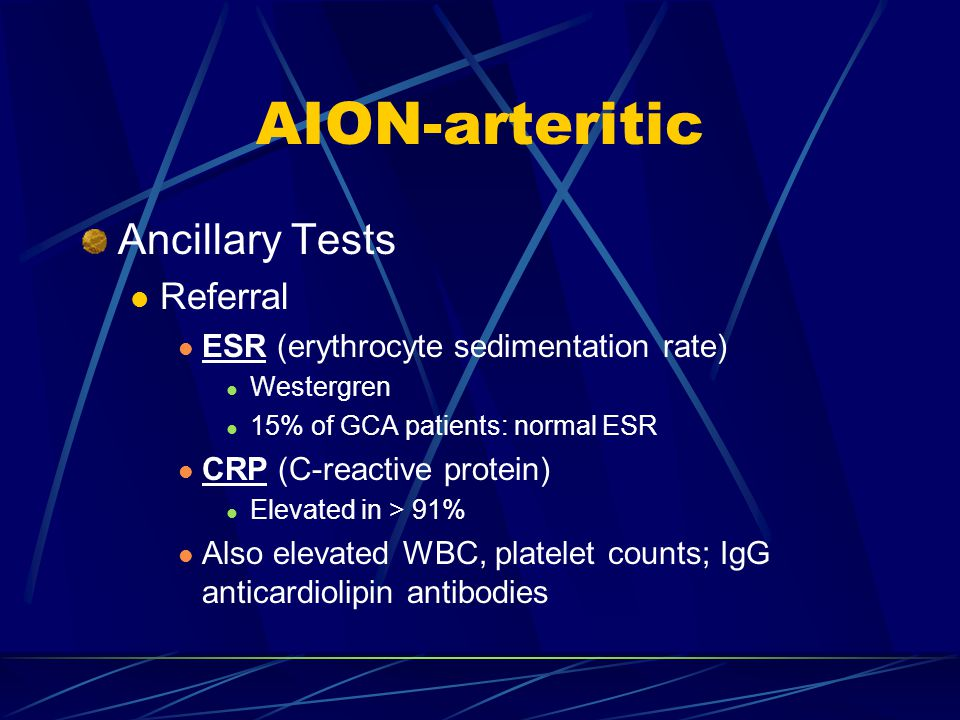 AION-arteritic Ancillary Tests Referral