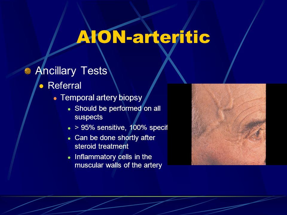 AION-arteritic Ancillary Tests Referral Temporal artery biopsy