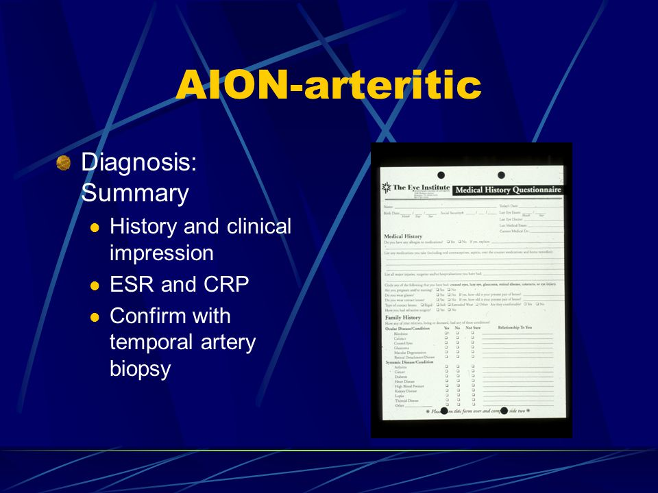 AION-arteritic Diagnosis: Summary History and clinical impression