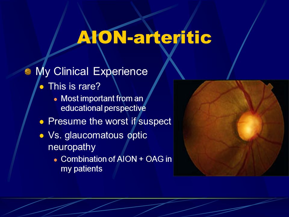 AION-arteritic My Clinical Experience This is rare