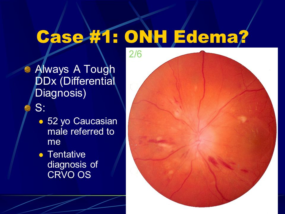 Case #1: ONH Edema Always A Tough DDx (Differential Diagnosis) S: