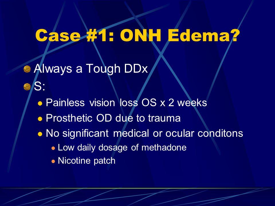 Case #1: ONH Edema Always a Tough DDx S: